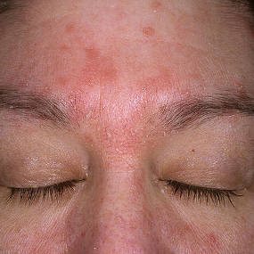 Seboroická dermatitida v obličeji