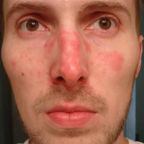 Seboroická dermatitida v obličeji muže