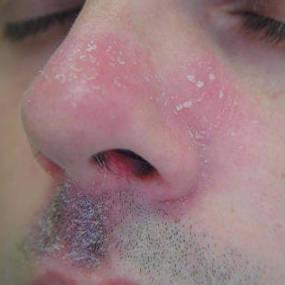 Seboroická dermatitida okolo nosu
