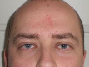 Před léčbou seboroické dermatitdy jsem měl tohle na čele