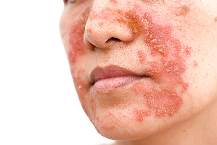 Seboroická dermatitida v obličeji ženy